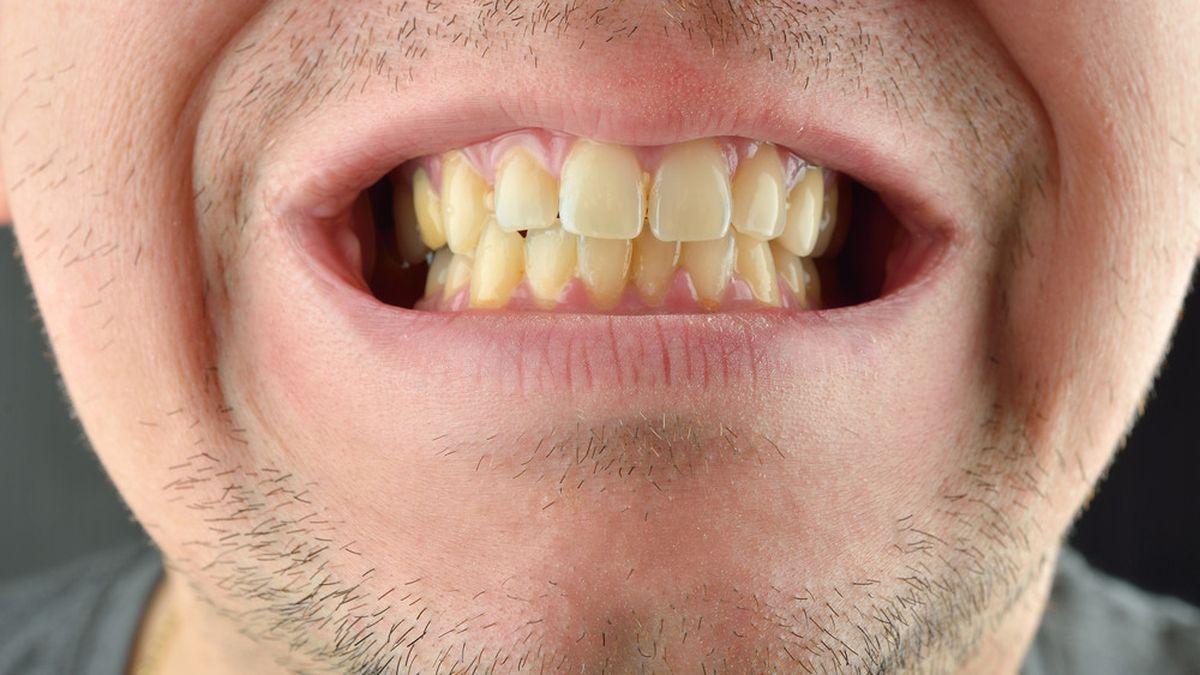 Penasaran Apa Yang Membuat Gigimu Mudah Kuning? Simak Disini!